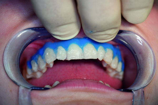 In office whitening without a light is done in the dental office and